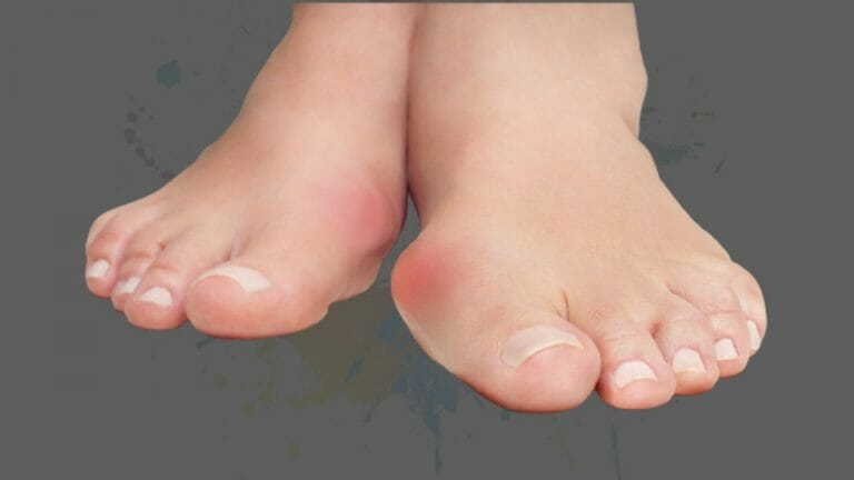 The Complete Guide to Bunions and How to Prevent Them from Getting Worse